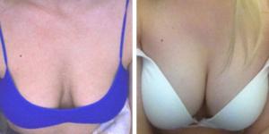 breaste extra recenze